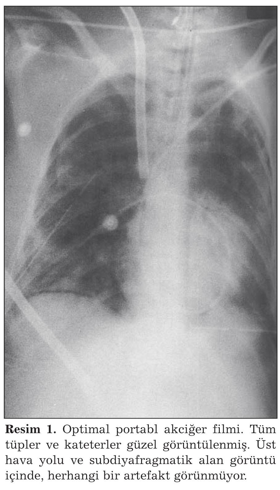 Pnömotoraks akciğer: nedenler, semptomlar ve ilk yardım