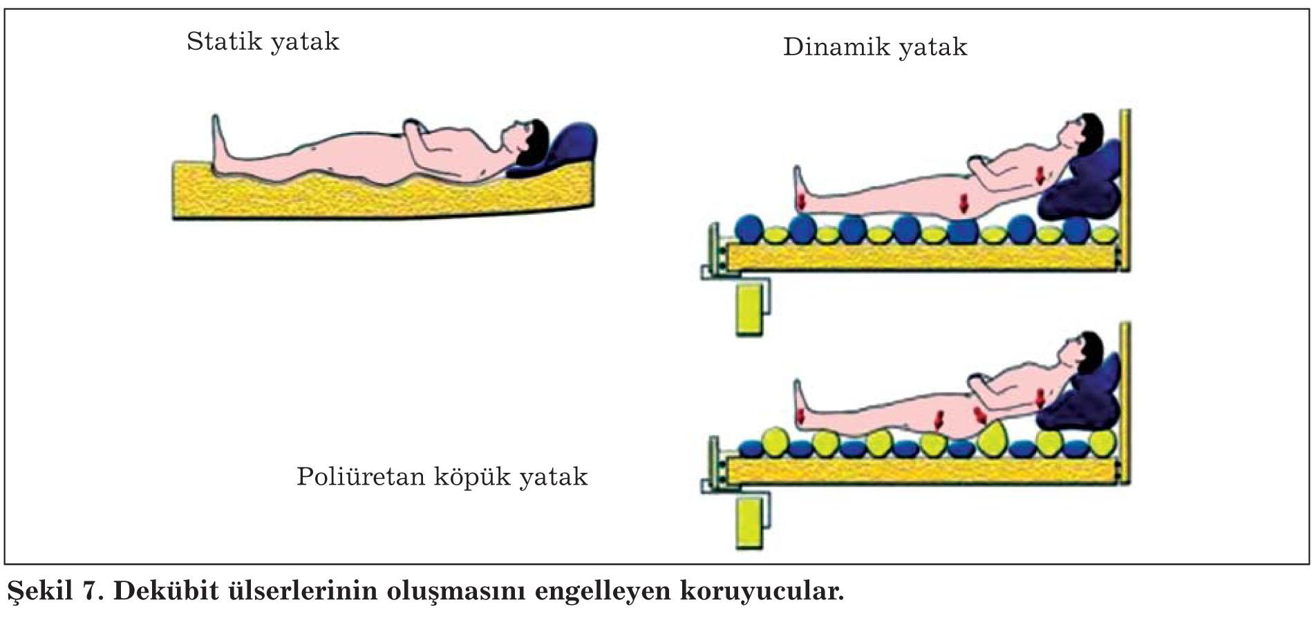 Basınç yaralarının nedenleri ve önlenmesi